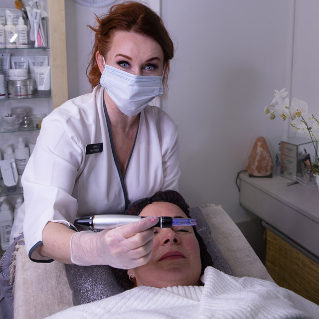 Diamond Dermabrasion tips for interchaingable wands for various face zones and tretaments effects