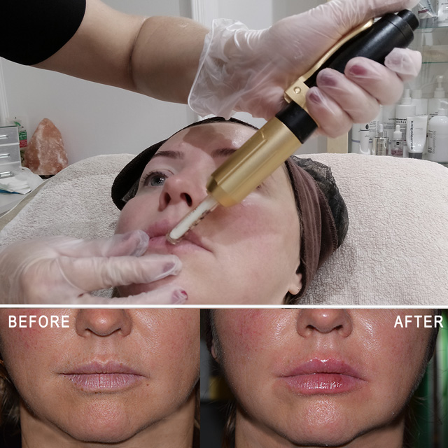 Microneedling facial with Dermapen