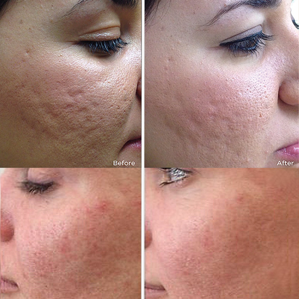 Dermapen microneedling in Richmond